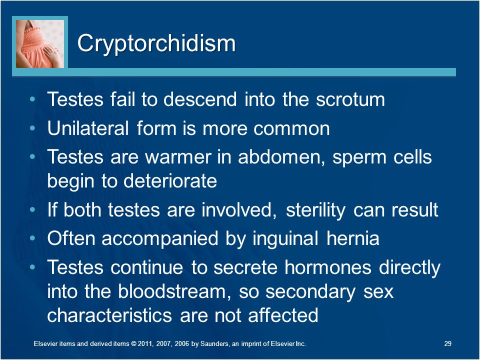 Cryptorchidism Testes fail to descend into the scrotum