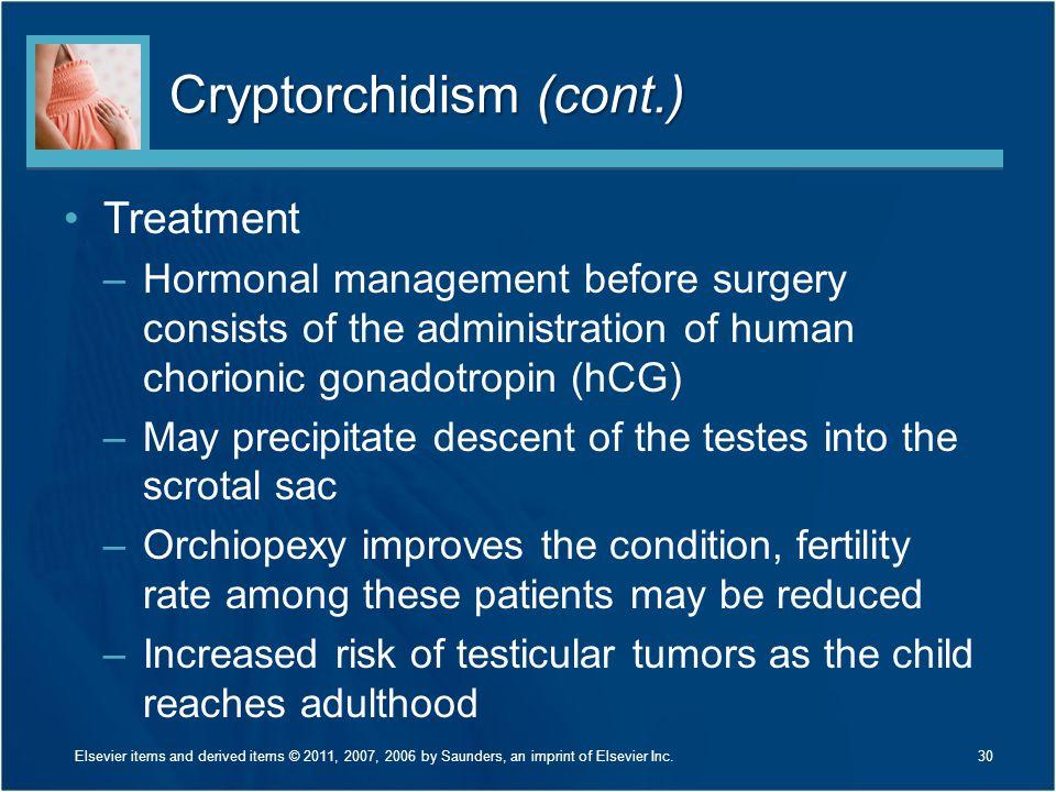 Cryptorchidism (cont.)