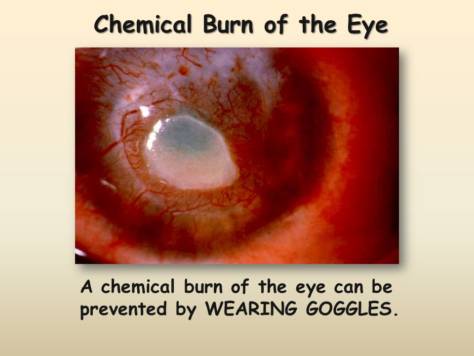 Chemical Burn of the Eye