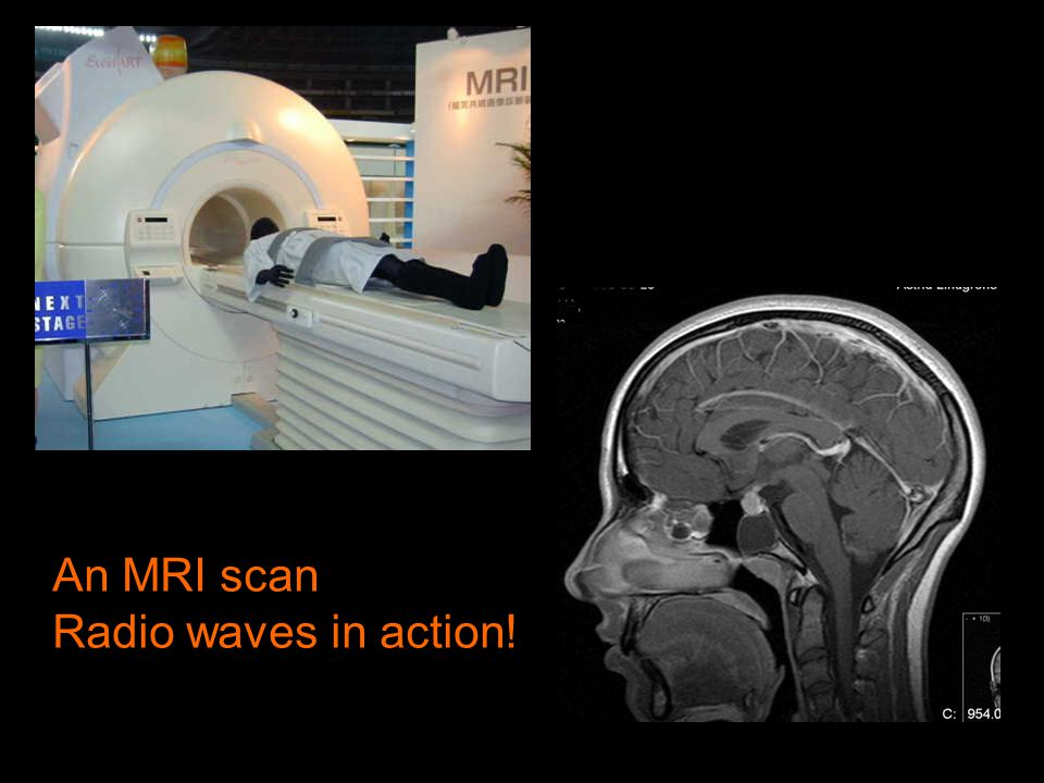 An MRI scan Radio waves in action!
