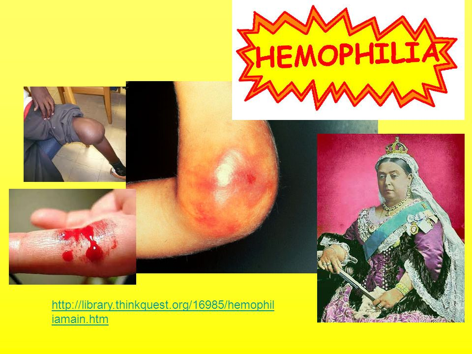 http://library.thinkquest.org/16985/hemophiliamain.htm