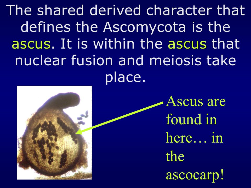 Ascus are found in here… in the ascocarp!