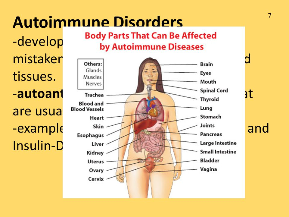 Autoimmune Disorders -develop when the immune response mistakenly targets normal body cells and tissues.