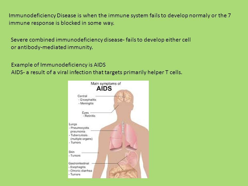 Immunodeficiency Disease is when the immune system fails to develop normaly or the immune response is blocked in some way.