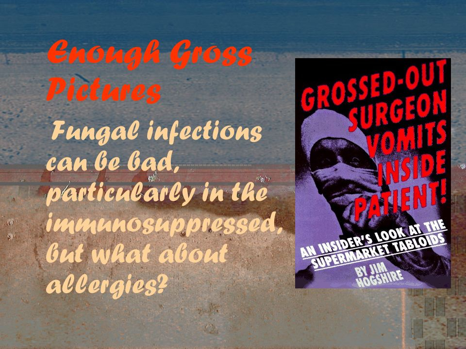 Enough Gross Pictures Fungal infections can be bad, particularly in the immunosuppressed, but what about allergies