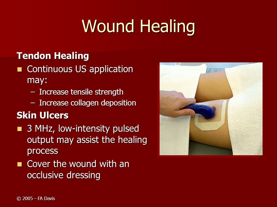 Wound Healing Tendon Healing Continuous US application may: