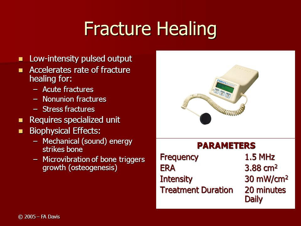 Fracture Healing Low-intensity pulsed output