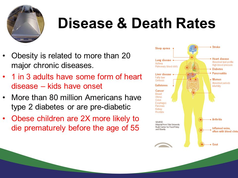 Disease & Death Rates Obesity is related to more than 20 major chronic diseases. 1 in 3 adults have some form of heart disease – kids have onset.