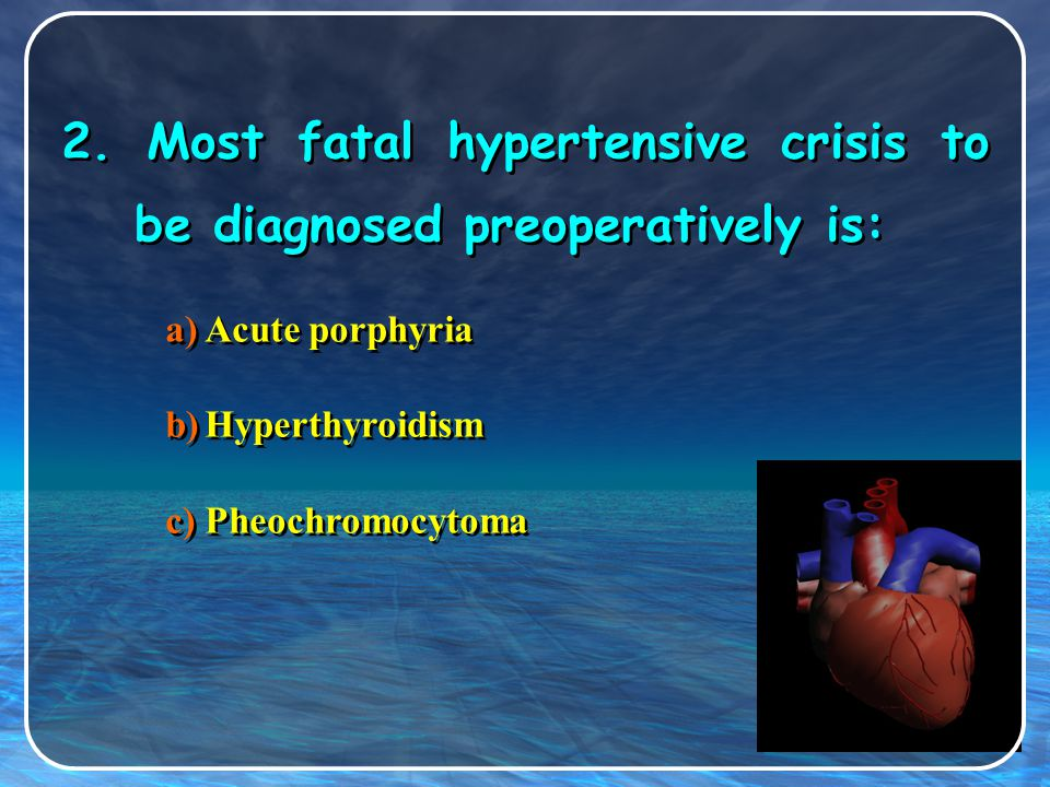 2. Most fatal hypertensive crisis to be diagnosed preoperatively is: