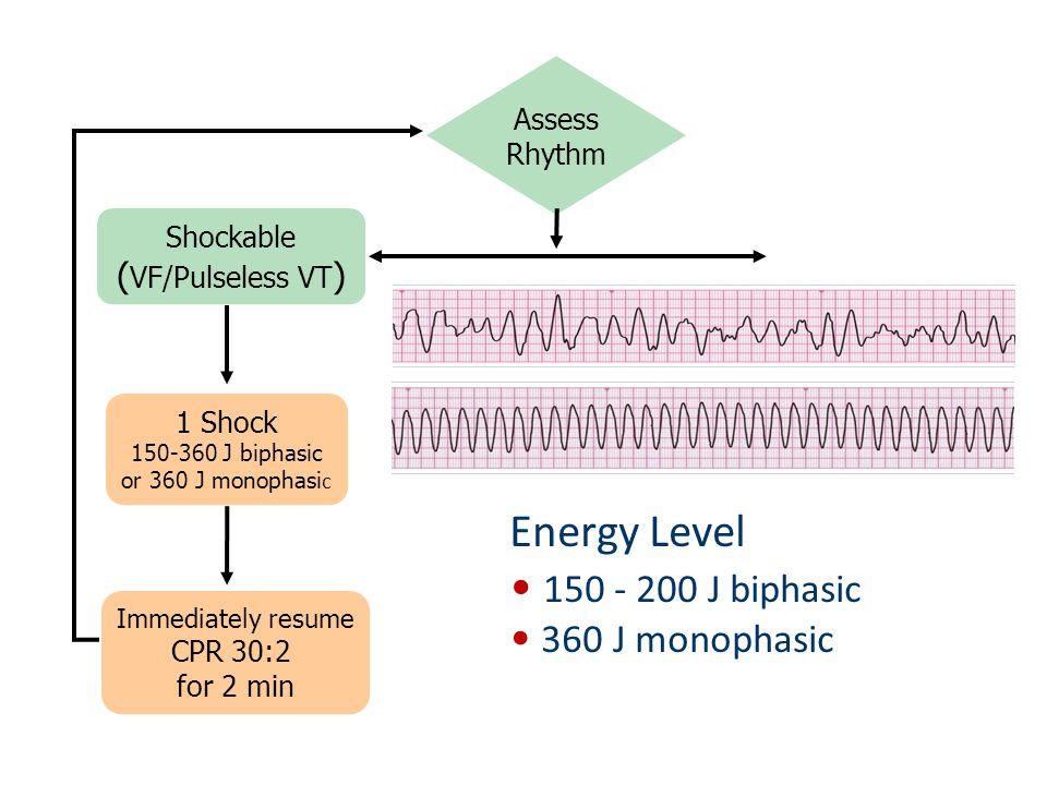 Energy Level 150 - 200 J biphasic 360 J monophasic (VF/Pulseless VT)