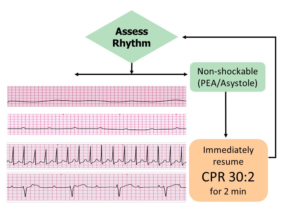 CPR 30:2 Assess Rhythm Non-shockable (PEA/Asystole) Immediately resume