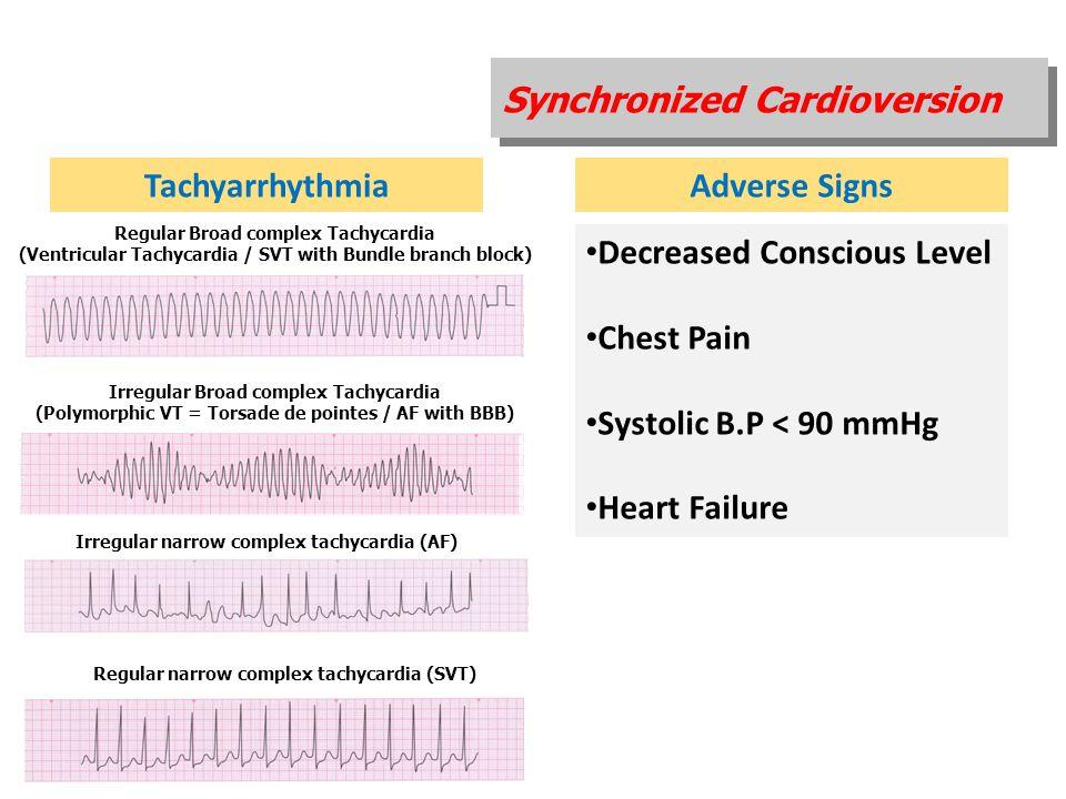 Tachyarrhythmia Adverse Signs