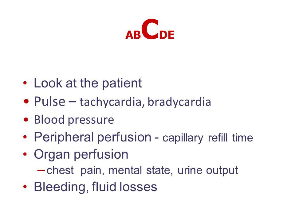 Pulse – tachycardia, bradycardia