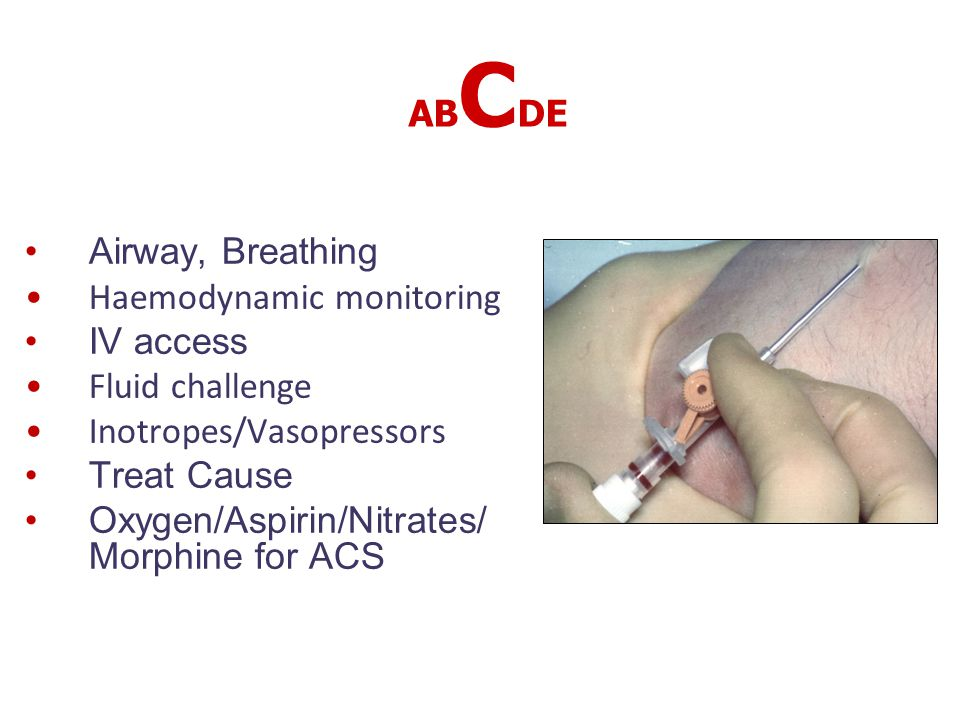 ABCDE Airway, Breathing. Haemodynamic monitoring. IV access. Fluid challenge. Inotropes/Vasopressors.
