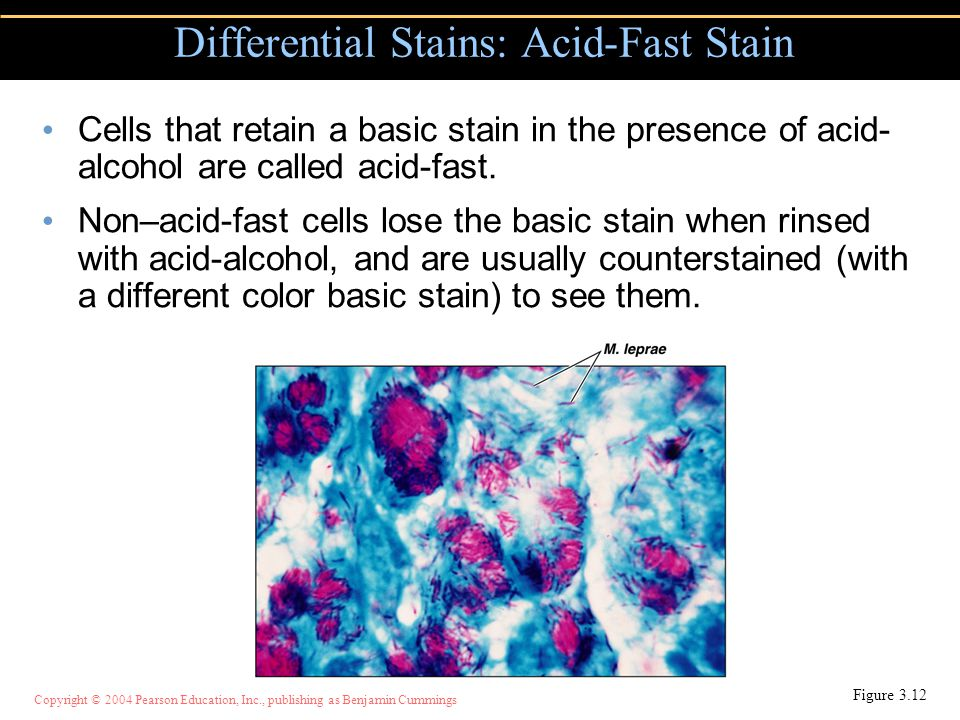 Differential Stains: Acid-Fast Stain