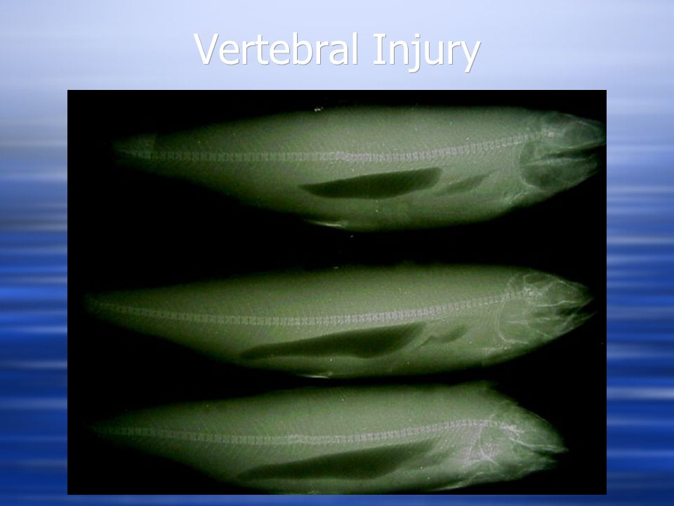 Vertebral Injury