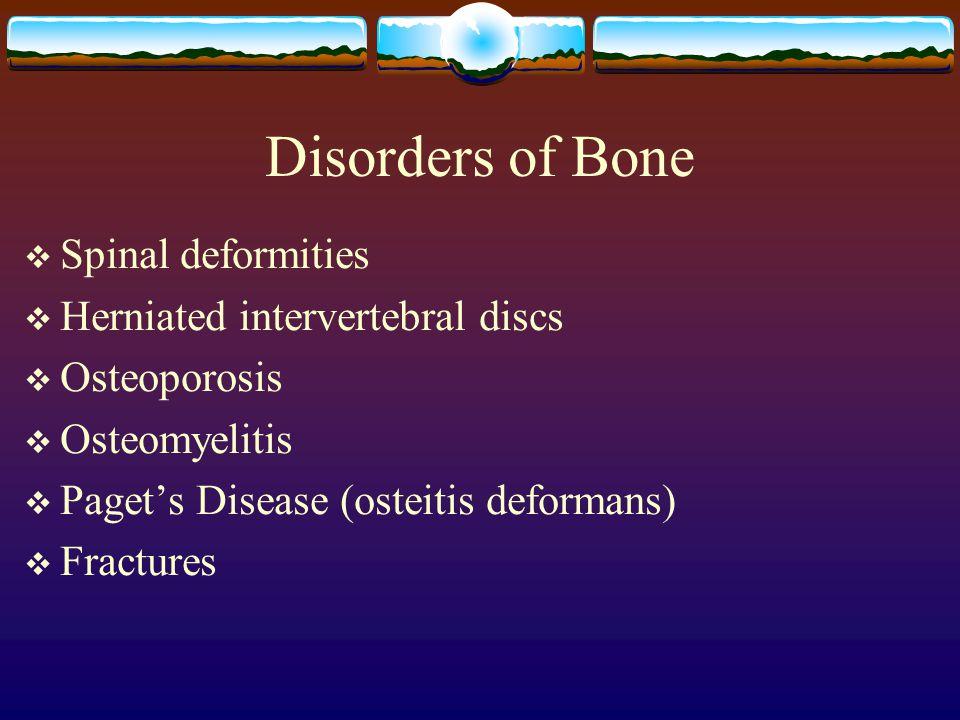 Disorders of Bone Spinal deformities Herniated intervertebral discs