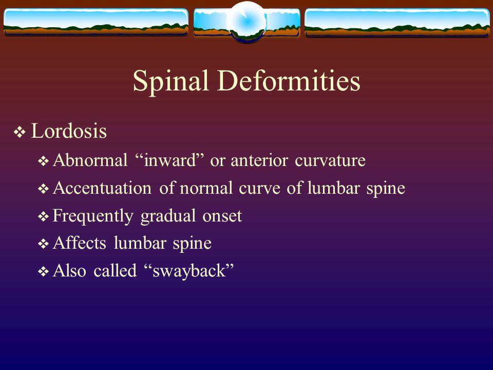 Spinal Deformities Lordosis Abnormal inward or anterior curvature
