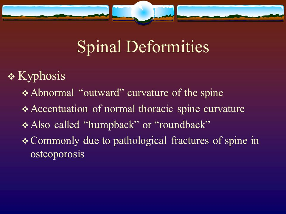 Spinal Deformities Kyphosis Abnormal outward curvature of the spine