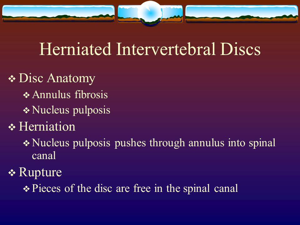 Herniated Intervertebral Discs