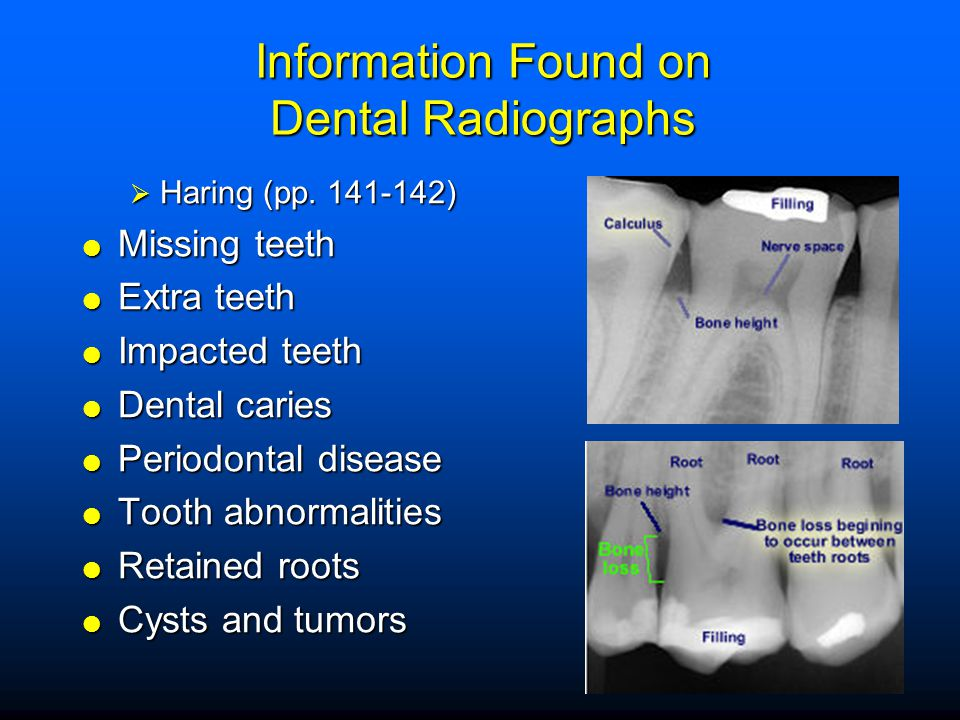 Information Found on Dental Radiographs