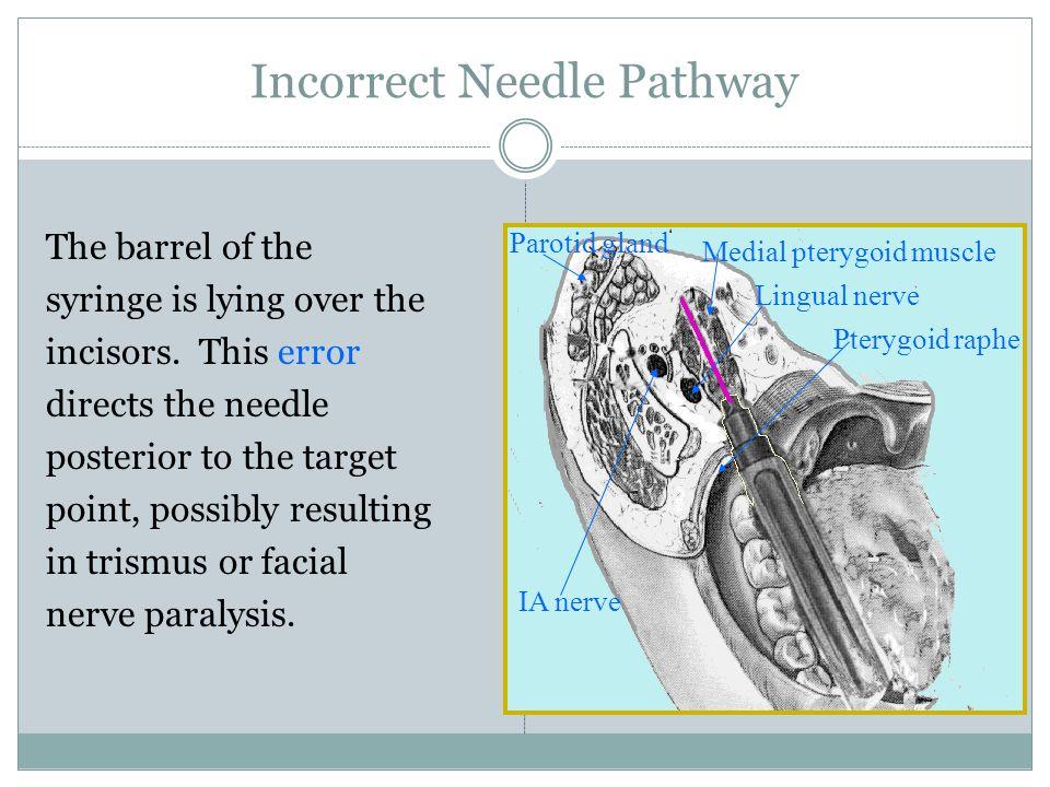 Incorrect Needle Pathway