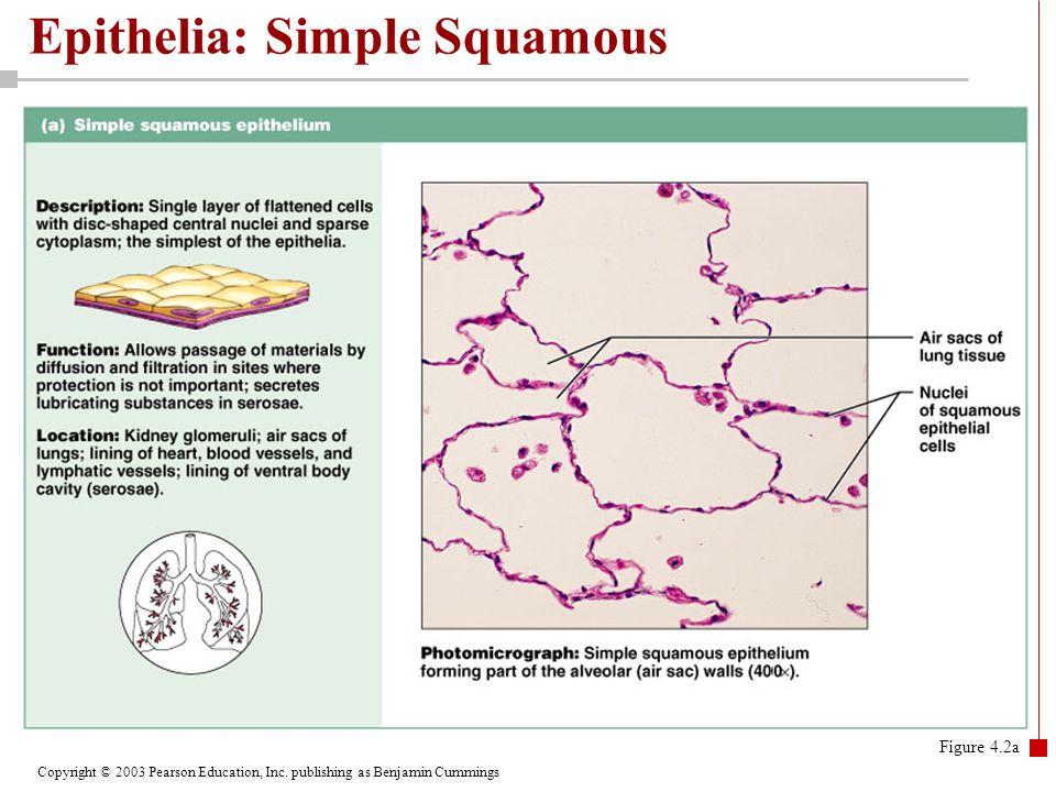 Epithelia: Simple Squamous