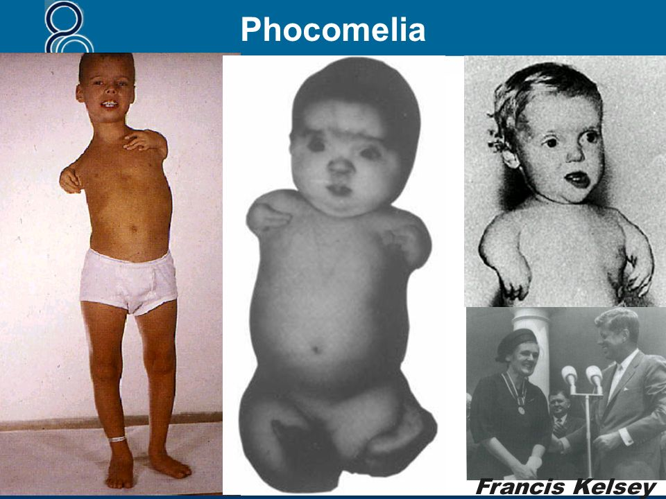 Phocomelia Francis Kelsey