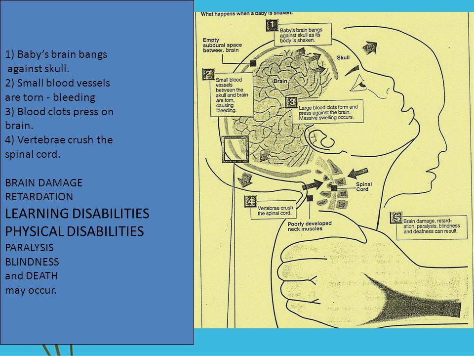 LEARNING DISABILITIES PHYSICAL DISABILITIES