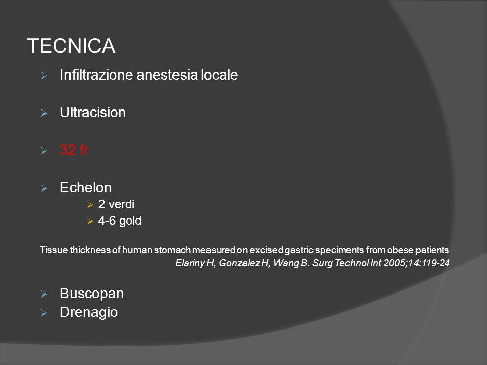 TECNICA Infiltrazione anestesia locale Ultracision 32 fr Echelon