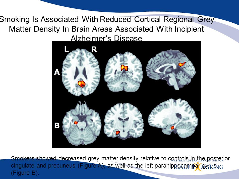 Smoking Is Associated With Reduced Cortical Regional Grey Matter Density In Brain Areas Associated With Incipient Alzheimer's Disease