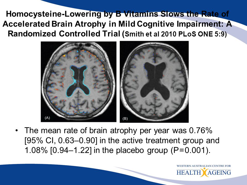 Homocysteine-Lowering by B Vitamins Slows the Rate of Accelerated Brain Atrophy in Mild Cognitive Impairment: A Randomized Controlled Trial (Smith et al 2010 PLoS ONE 5:9)