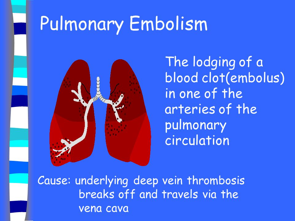 Pulmonary Embolism The lodging of a blood clot(embolus) in one of the