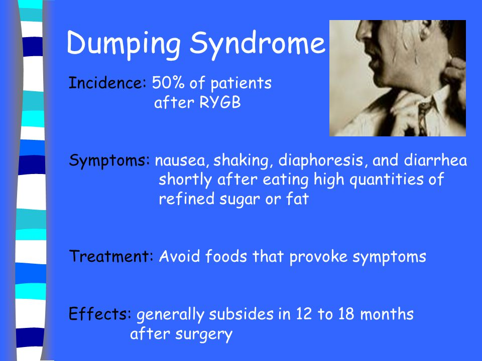 Dumping Syndrome Incidence: 50% of patients after RYGB