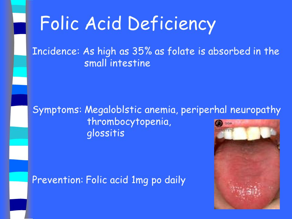 Folic Acid Deficiency Incidence: As high as 35% as folate is absorbed in the small intestine.