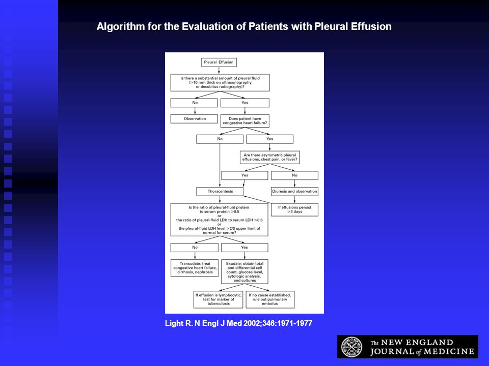 Algorithm for the Evaluation of Patients with Pleural Effusion