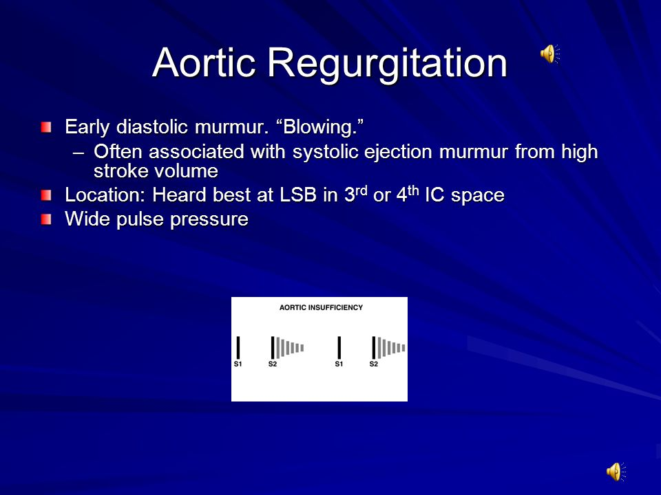 Aortic Regurgitation Early diastolic murmur. Blowing.