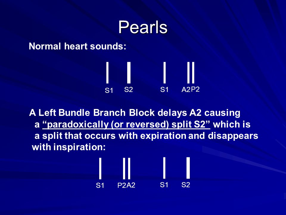 Pearls Normal heart sounds: