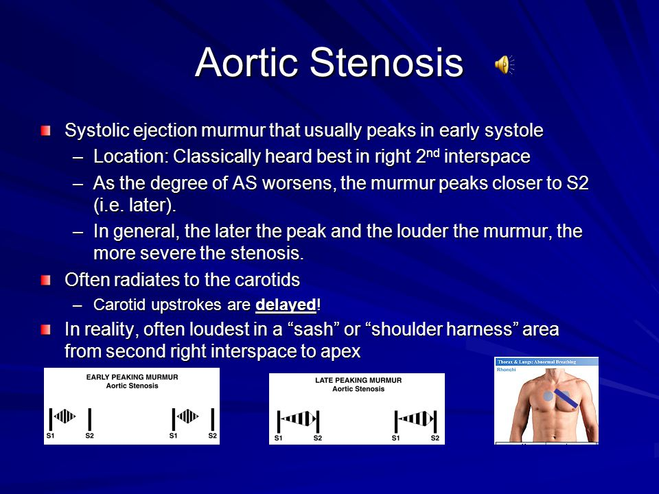Aortic Stenosis Systolic ejection murmur that usually peaks in early systole. Location: Classically heard best in right 2nd interspace.