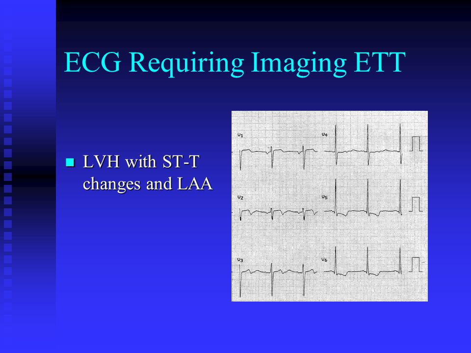ECG Requiring Imaging ETT