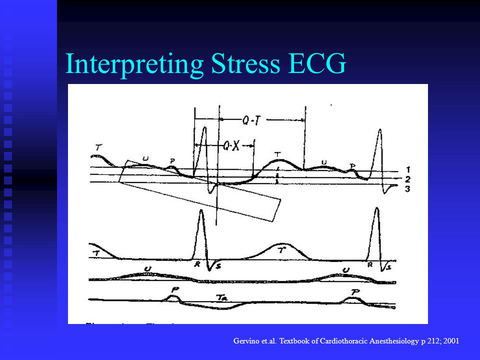Interpreting Stress ECG