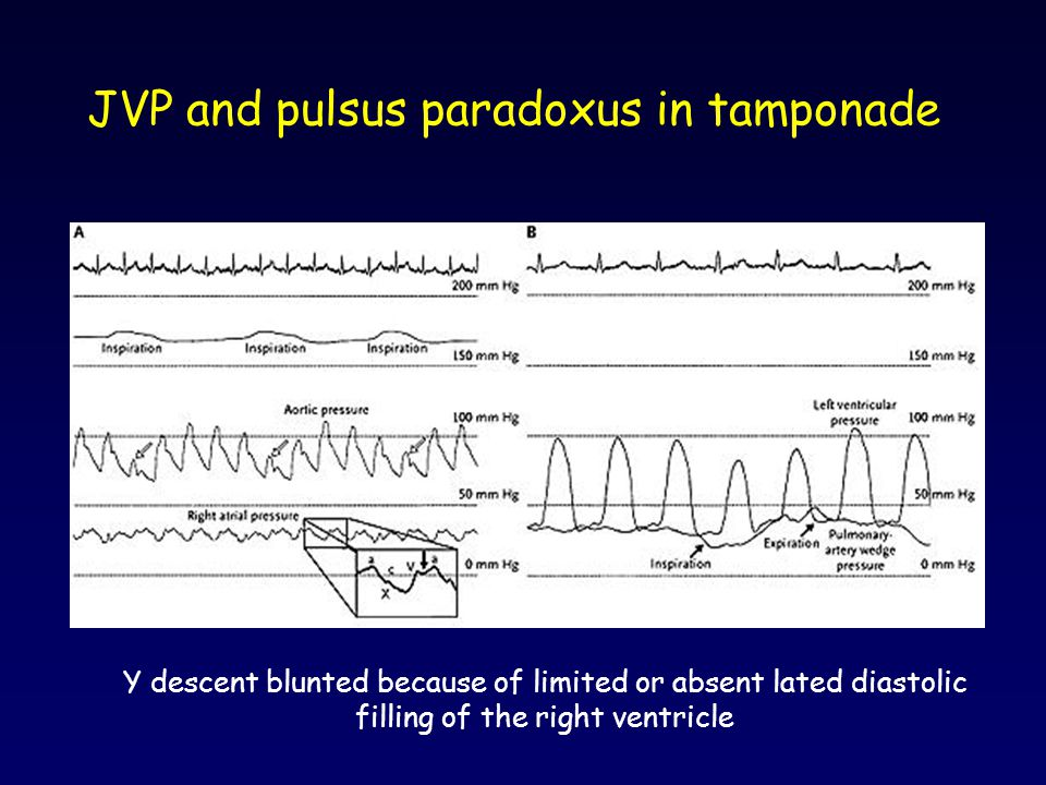 JVP and pulsus paradoxus in tamponade