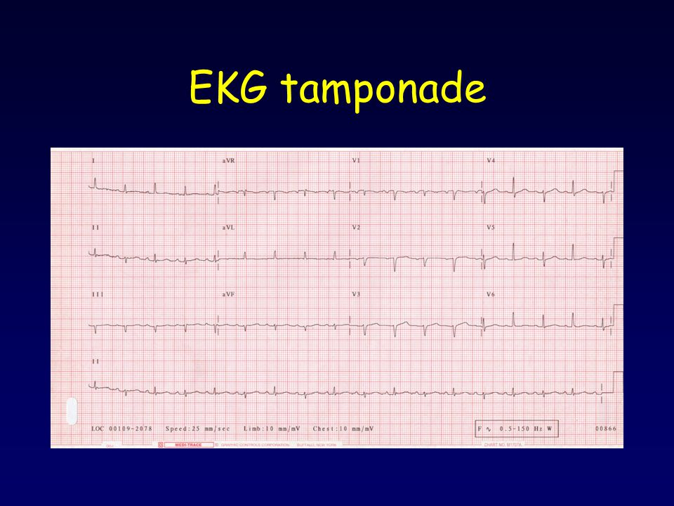 EKG tamponade Electrical alternans, low voltage, tachycardia