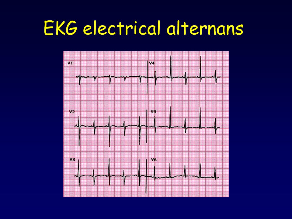 EKG electrical alternans