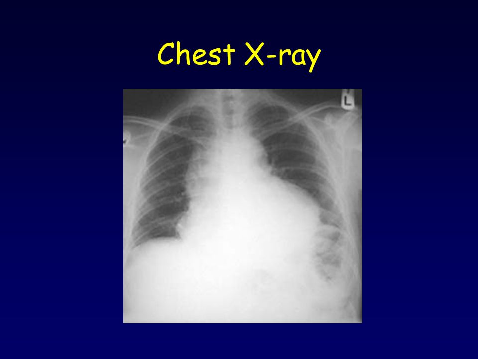 Chest X-ray Enlarged cardiac silhouette