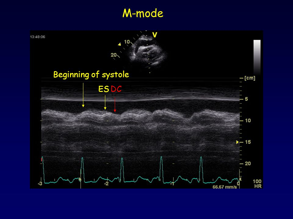 M-mode Beginning of systole ES DC