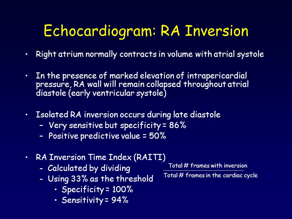 Echocardiogram: RA Inversion