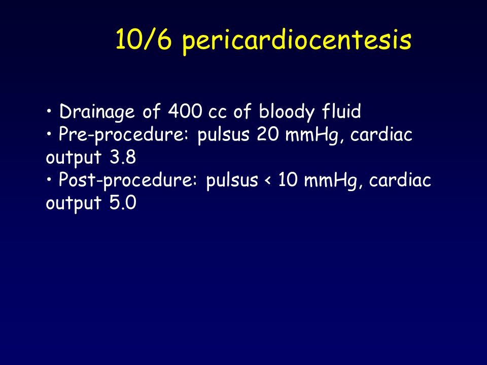 10/6 pericardiocentesis Drainage of 400 cc of bloody fluid