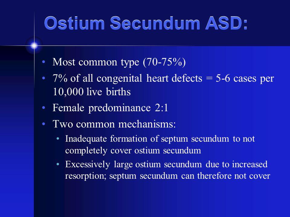 Ostium Secundum ASD: Most common type (70-75%)