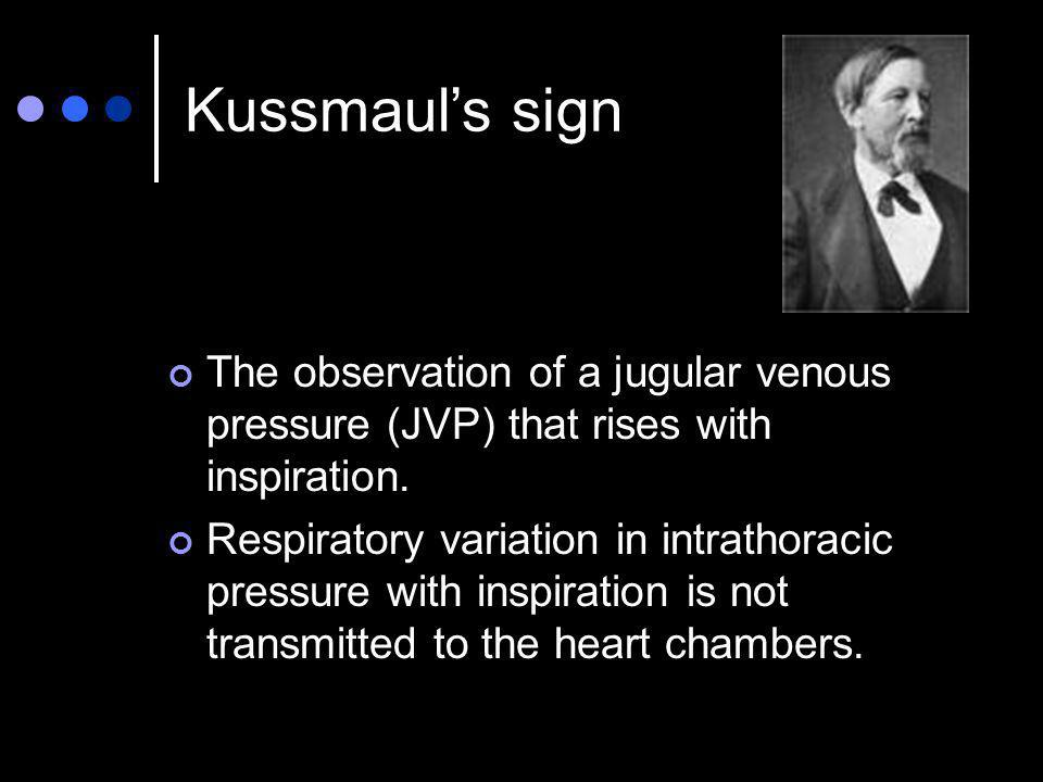 Kussmaul's sign The observation of a jugular venous pressure (JVP) that rises with inspiration.